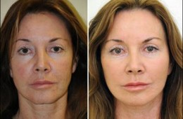 COSMETIC/PLASTIC SURGERY
