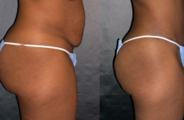LOCAL WEIGHT LOSS (LIPOSUCTION)