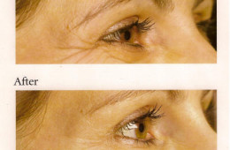 Cosmetic Ophthalmology